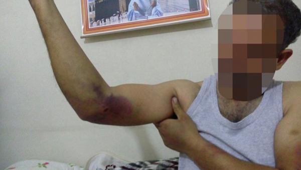 Ağabeyden 'kardeşe işkence' iddiası
