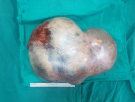 17 yaşındaki kızın karnından 5 kiloluk tümör çıktı