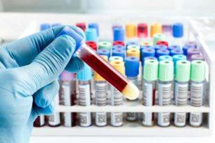 Dünya geneli Koronavirüs vaka sayısı 40 milyon 600 bini geçti