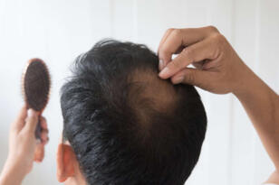 Pandemi döneminde saç sağlığı sorunları arttı